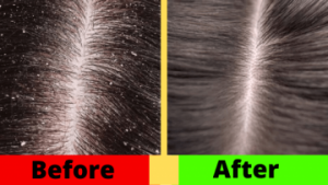 How to Remove Dandruff Naturally, Effectively, and Easily